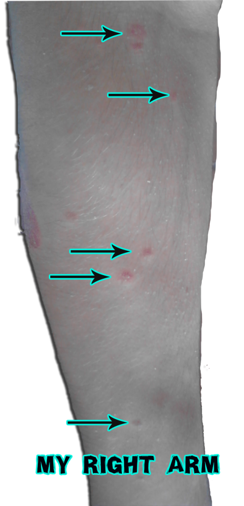healing psoriasis on my arms