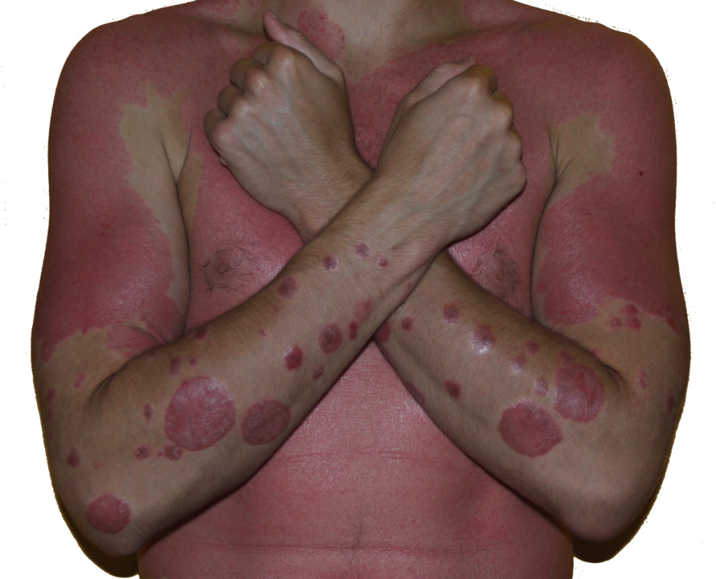 guttate psoriasis home remedy
