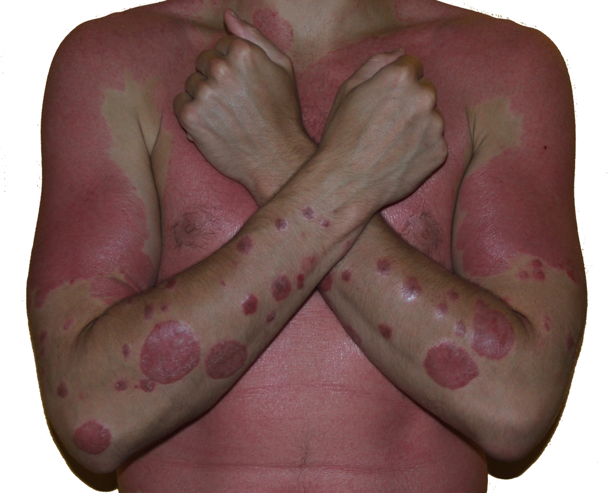 best remedy for psoriasis