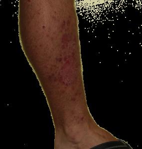 leg psoriasis healing