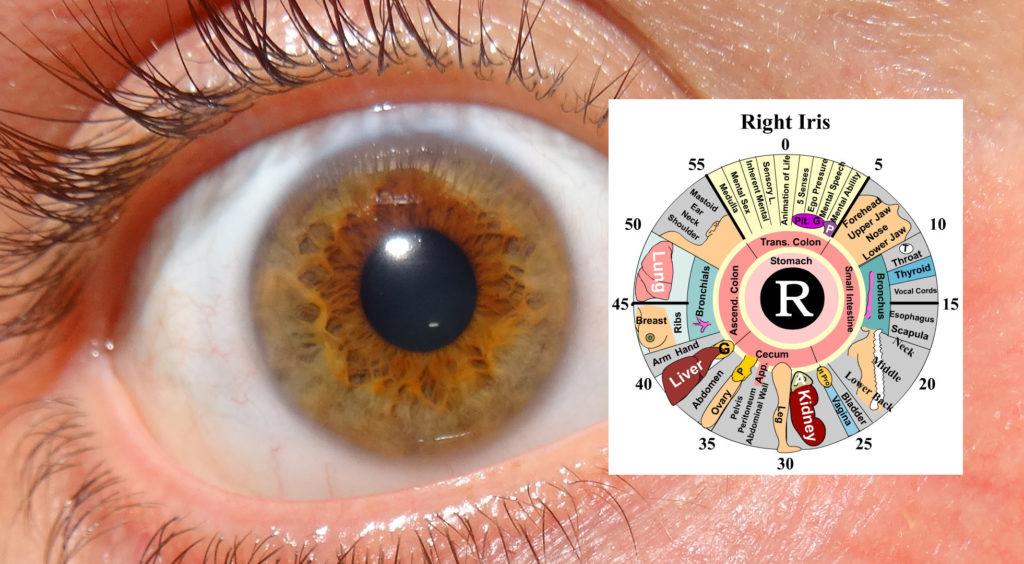 my-right-eye