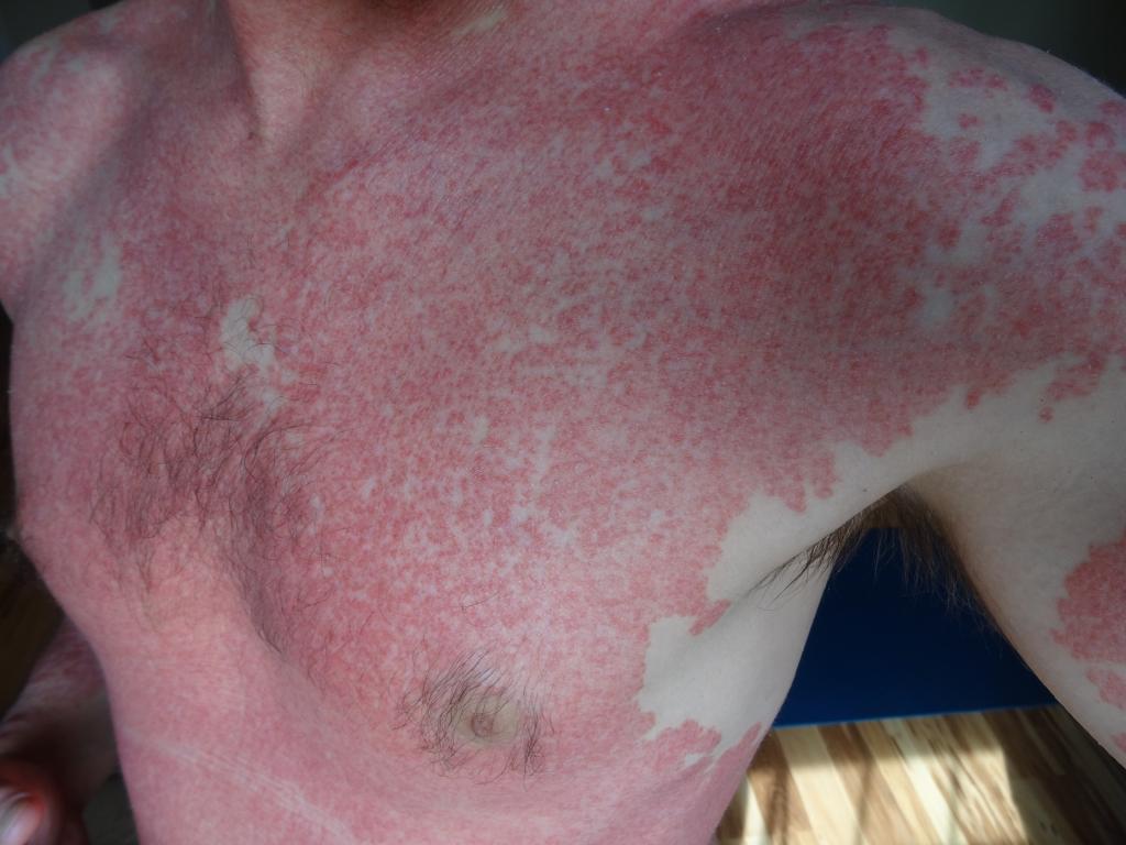 What Is Scalp Psoriasis What Is Scalp Psoriasis new pics