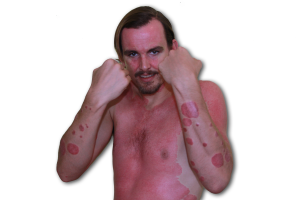 guttate psoriasis pictures