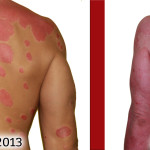 back psoriasis healing comparison picture