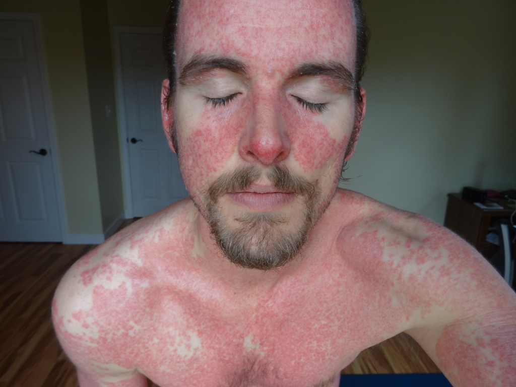 Natural Cure For Psoriasis Free