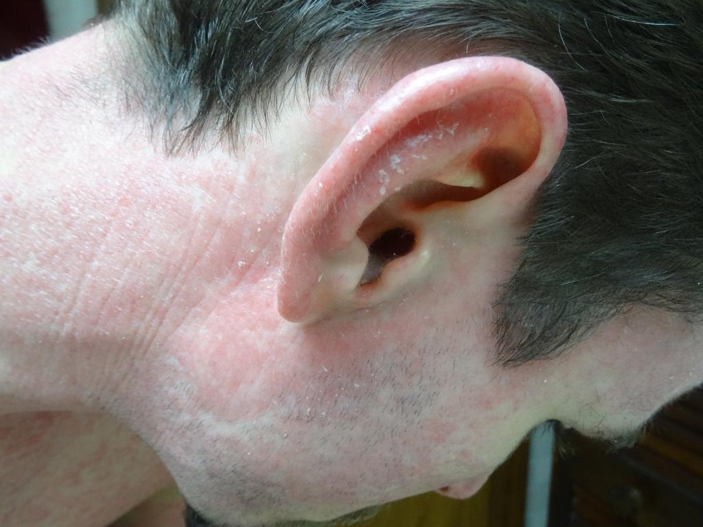Curing Scalp Psoriasis Naturally