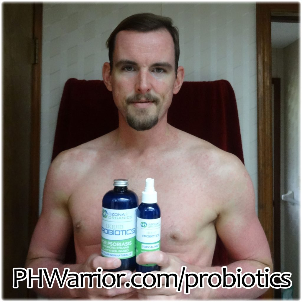 how i cured my psoriasis in 90 days 100 natural treatment