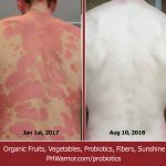 Psoriasis Pictures and Video September 1st 2018